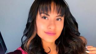 Thamara Gómez se recupera tras accidente que afectó su rostro
